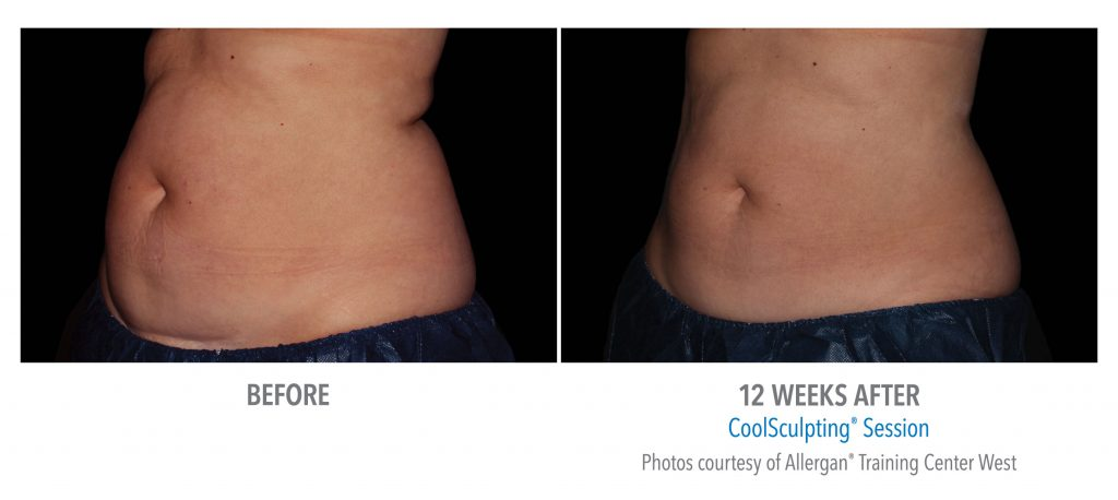 Coolsculpting Nashville Green Hills Brentwood